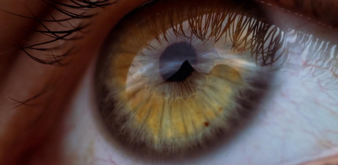 Das richtige Zubehör für Kontaktlinsen